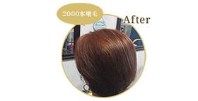 「施術後(2000本)」